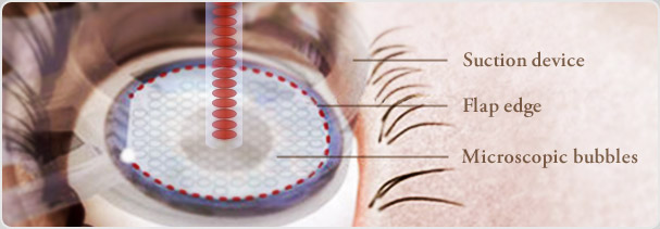 LASIK/Refractive Services Page Banner