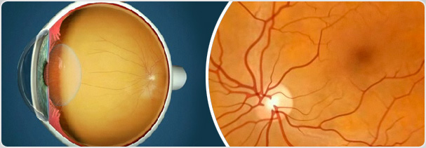 Retina & Vitreous Page Banner